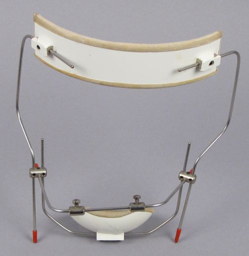 In the late 20th century, orthodontic appliances included head gear such as this one, used to align and adjust the angle of teeth.