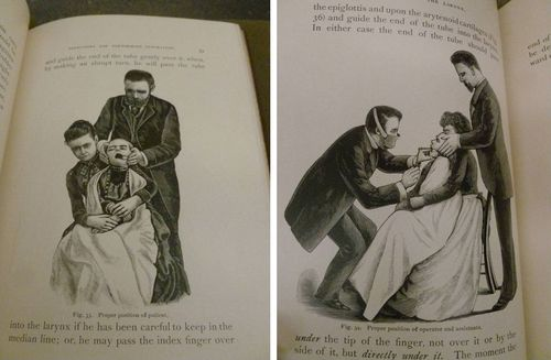 "These creepy illustrations, demonstrating the proper way in which a child is held and gagged in preparation for intubation, capture the disturbing nature of the procedure. From ""Intubation of the Larynx"":http://ow.ly/mUFQR by Frank Waxham (1888)."