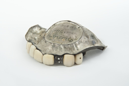 The mystery denture in our collection: JN2014-3104-S