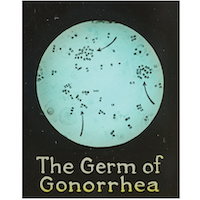The Germ of Gonorrhea Slide