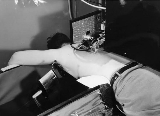 A man lies facedown with a contraption on his back. It is made of metal with rubber tubing and is pressed against his back. He is shirtless but wearing pants with a belt.