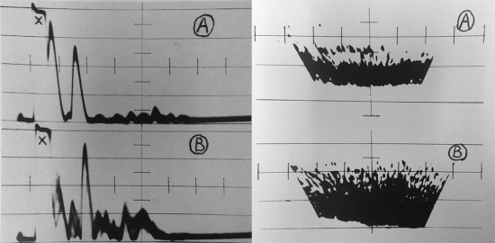 "Two drawings side by side showing horizontal lines making up graphs and streaks and splotches of black ink going across the pages. There are two graph readings on each of the pages. There is an ""A"" and ""B"" on all of the graphs, the A's for the top one and the B's for the bottom ones."