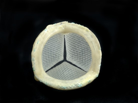 An object that has a plastic or rubberized ring with mesh hanging behind it. The mesh-like substance is cut in several places so it appears as three triangles, like a Mercedes Benz logo.